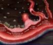 新しい血管新生