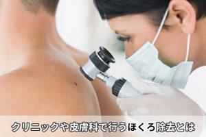 クリニックや皮膚科で行うほくろ除去とは