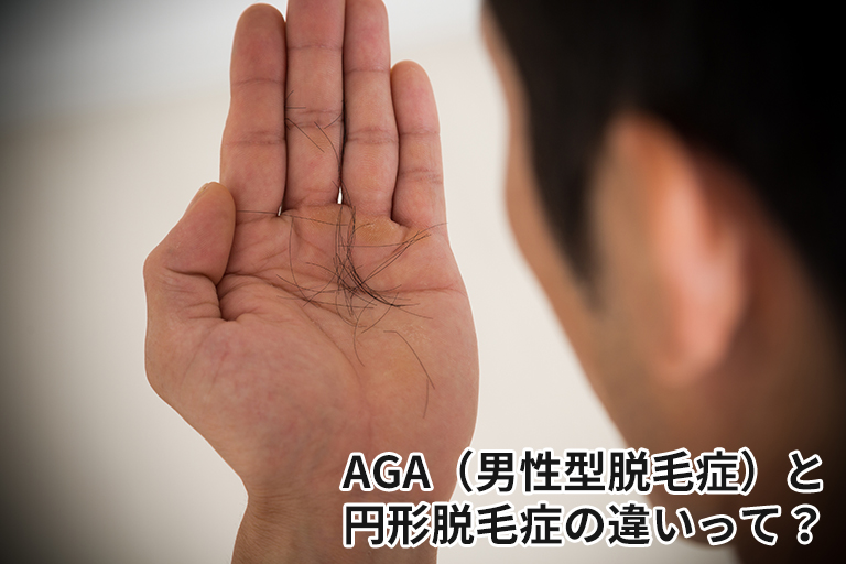 AGA(男性型脱毛症)と円形脱毛症の違いって?