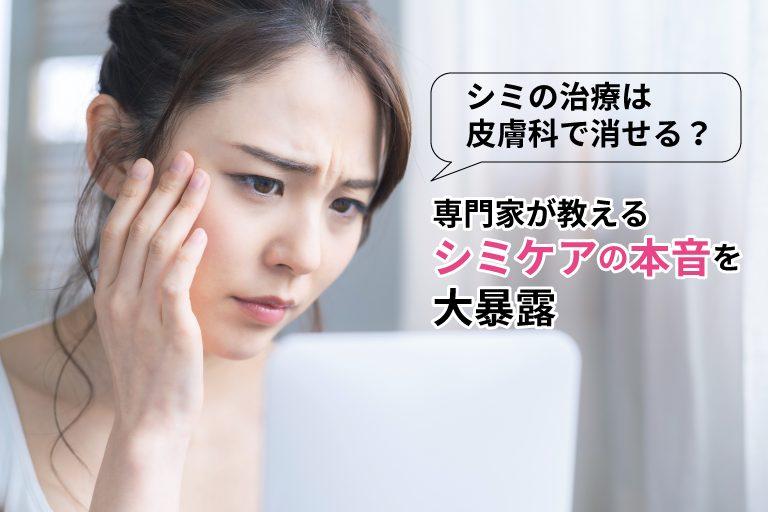 シミの治療は皮膚科で消せる?専門家が教えるシミケアの本音を大暴露